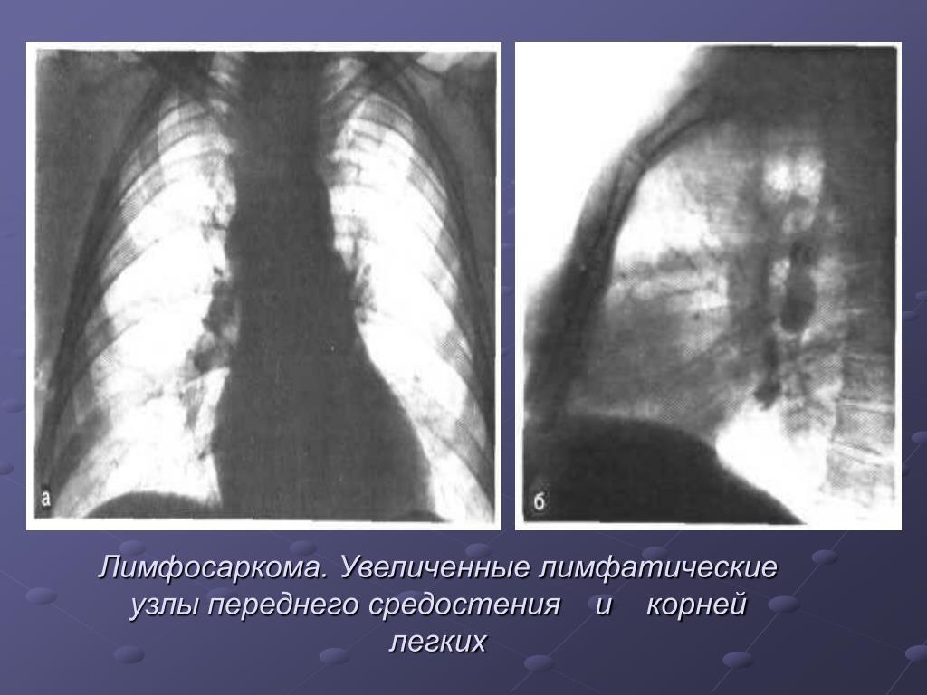 Лимфаденопатия: классификация, признаки и лечение