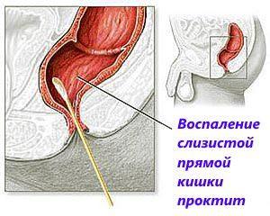 Проктит — симтомы, классификация и способы лечения