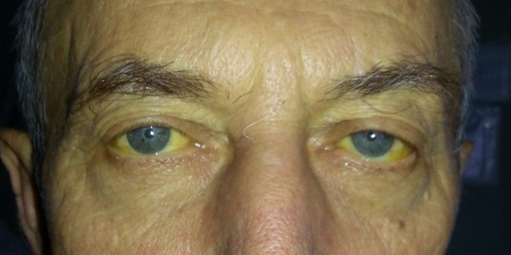 Желтуха - симптомы, виды, диагностика и способы лечения