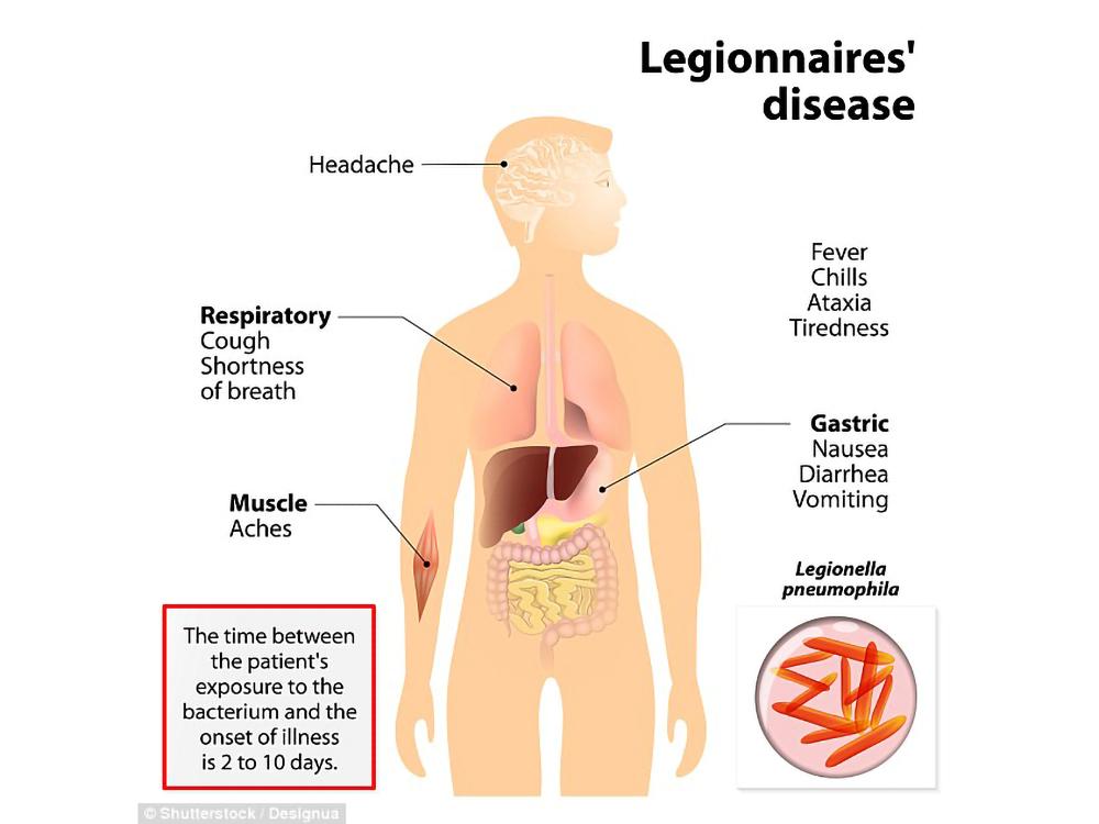 Болезнь легионеров