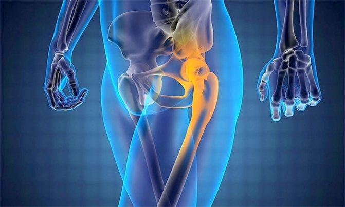 Коксартроз – причины, степени, симптомы | лечение коксартроза без операции