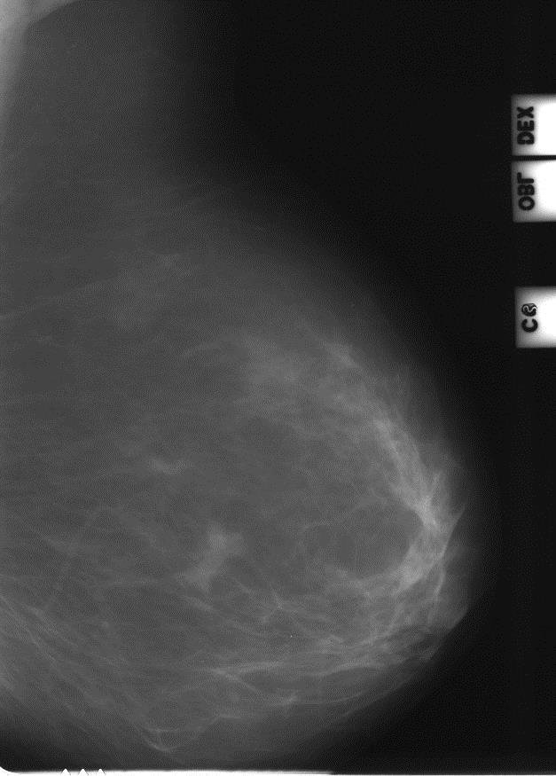 Заключение: bi-rads-4 - вопрос маммологу - 03 онлайн