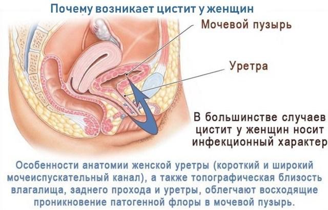 Уретрит у женщин: симптомы и лечение в домашних условиях, как быстро вылечить уретрит