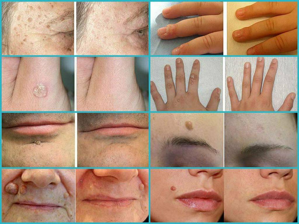 Как выглядит бородавка — 150 фото разновидностей, структура и описание свойств характерных наросту