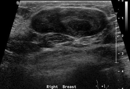 Фиброаденома молочной железы: размеры для операции, когда нужно удалять и какие есть методы хирургического вмешательства