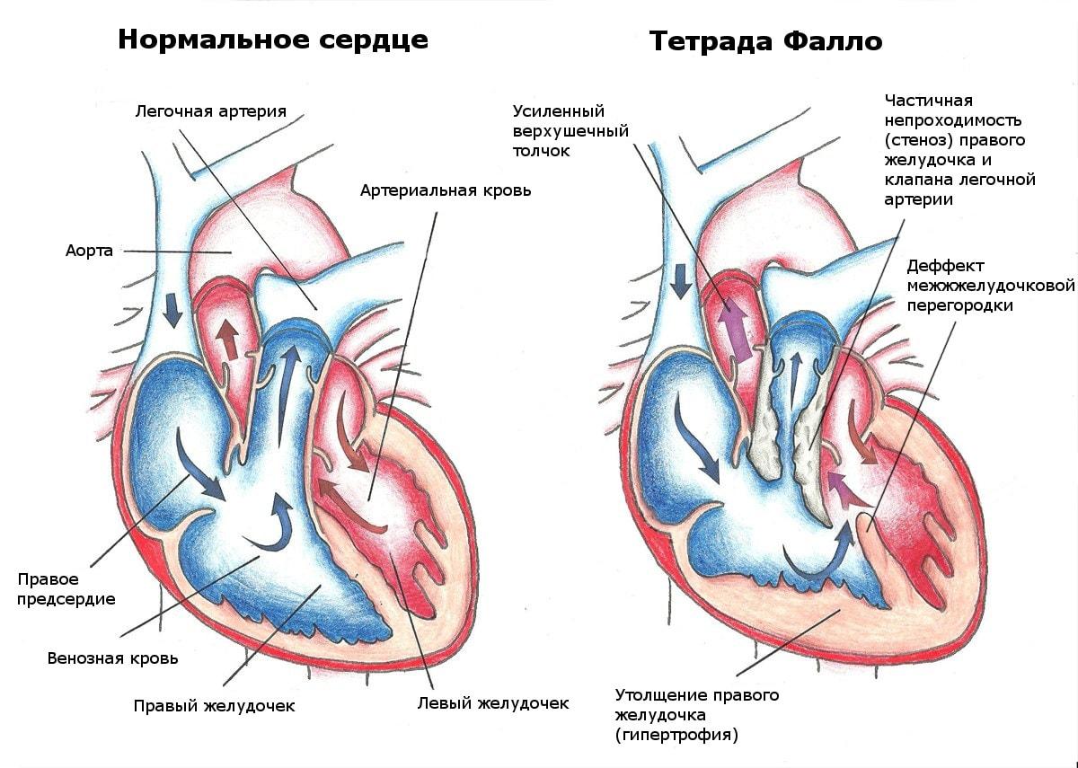 Все о пороках сердца: характеристики патологий и прогноз больного