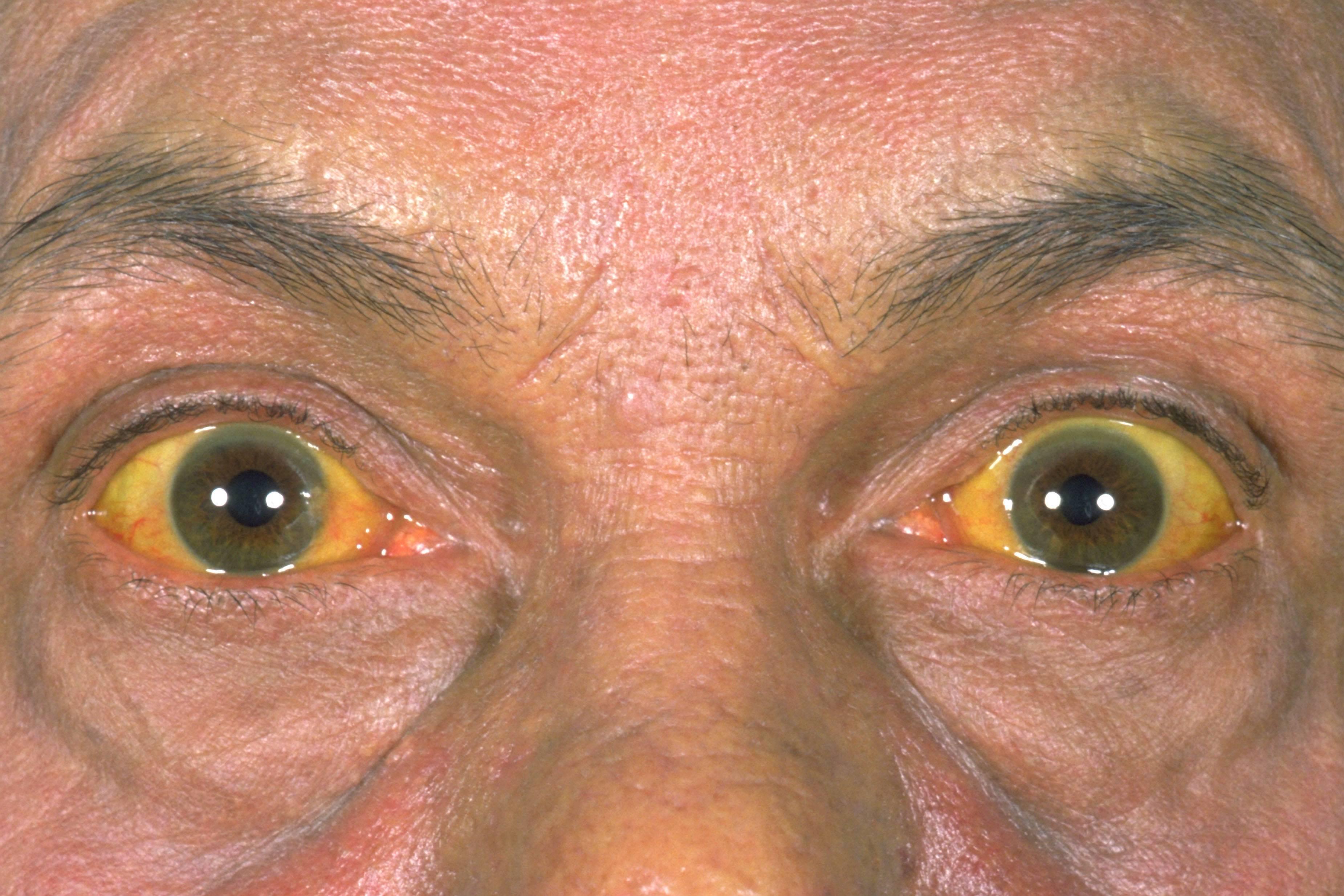 Желтуха: как называется по-другому, виды и лечение желтух