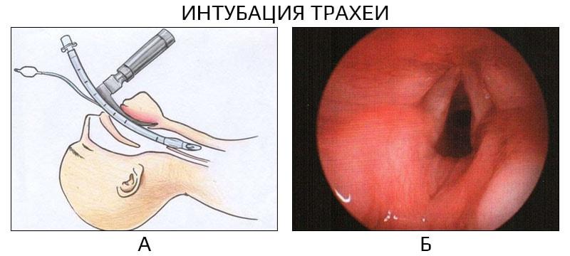 Интубация: использование, процедура и побочные эффекты - medical insider