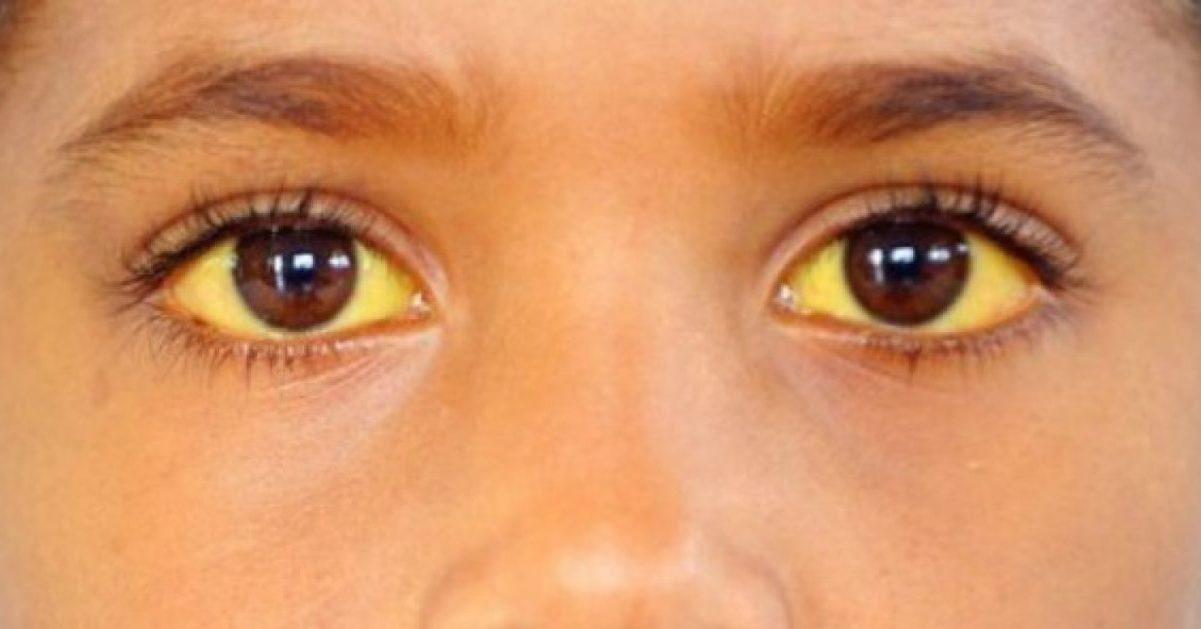Гипербилирубинемия - что это такое? диагностика, причины синдрома. что такое гипербилирубинемия и как лечится это заболевание