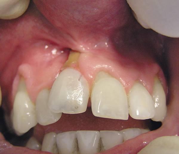 Удаление ретинированного зуба: показания и процесс операции