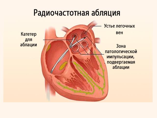 Радиочастотная абляция сердца как метод лечения тахиаритмий
