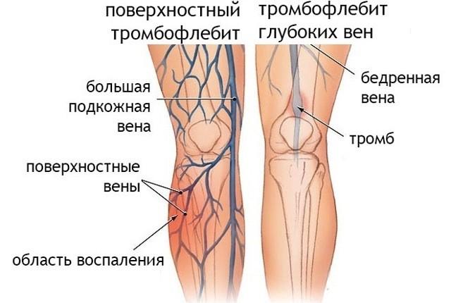 Тромбофлебит нижних конечностей – симптомы, признаки, лечение, диета