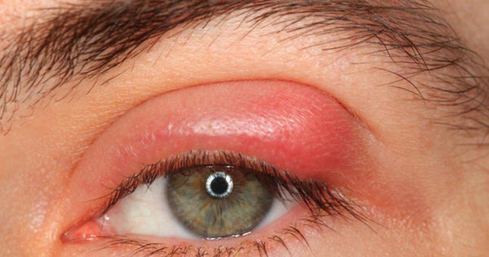 Ячмень на глазу - лечение, причины, симптомы, мазь от ячменя на глазу