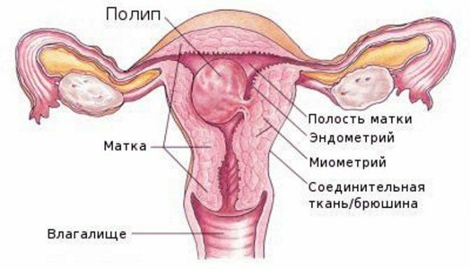 Полип эндометрия в матке