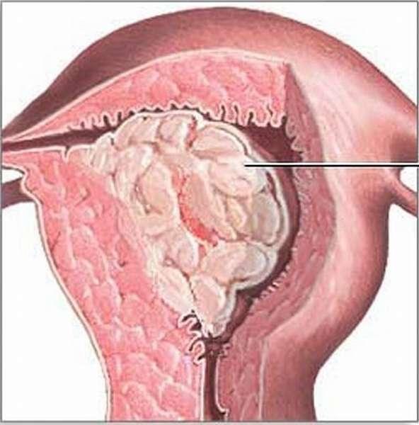 Миома матки и гиперплазия эндометрия – что это, причины, симптомы и признаки, диагностика и лечение миомы и гиперплазии эндометрия в москве