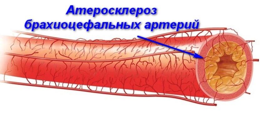 Брахиоцефальные артерии что это такое - здоров.сердцем