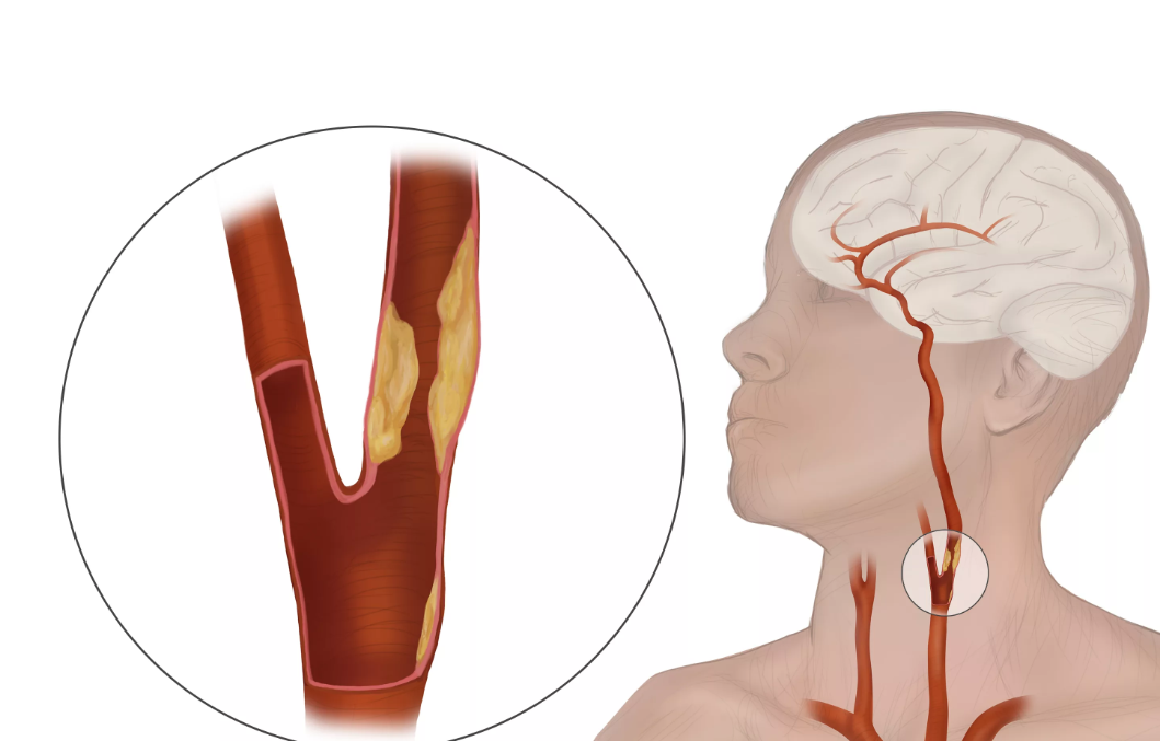 Атеросклероз брахиоцефальных артерий: симптомы и лечение