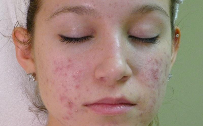 ❶ подкожный клещ демодекс (demodex) на лице у человека: фото, описание и как бороться