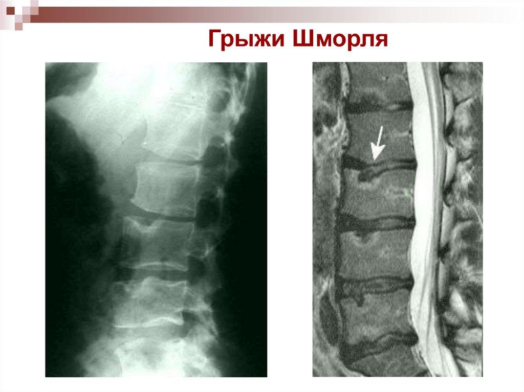 Грыжа шморля позвоночника - как лечить болезнь у которой нет симптомов