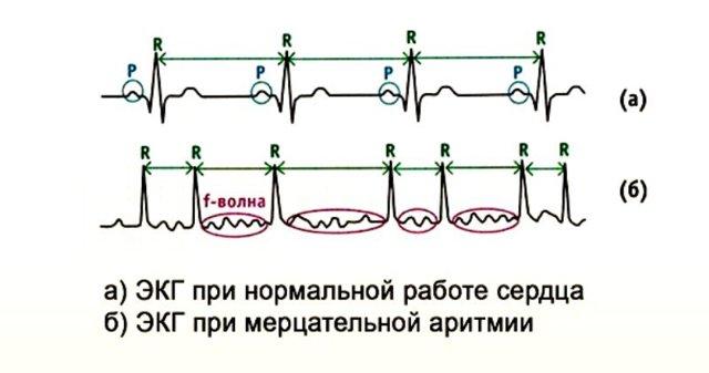 Радиочастотная изоляция устьев легочных вен при мерцательной аритмии | heart-team.ru