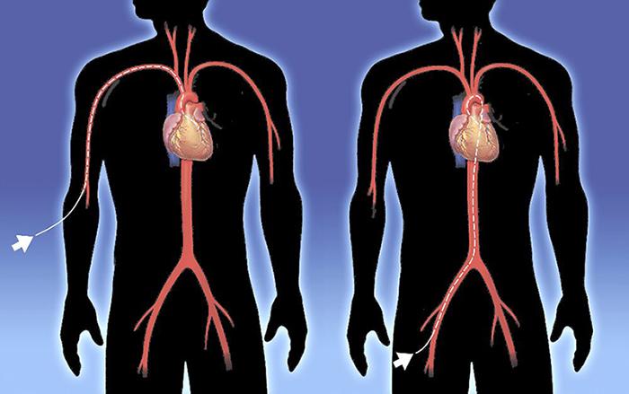 Абляция сердца: показания к операции, осложнения, реабилитация
