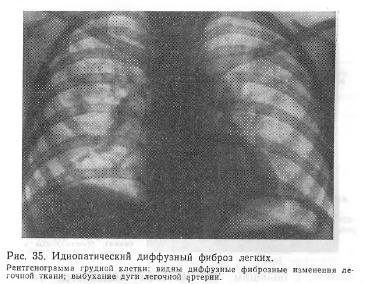 Фиброз легких: медикаментозное, немедикаментозное, хирургическое лечение