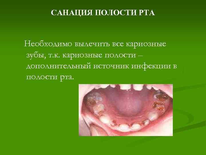Санация полости рта – что это такое и для чего она нужна? кому она рекомендована и ее целесообразность