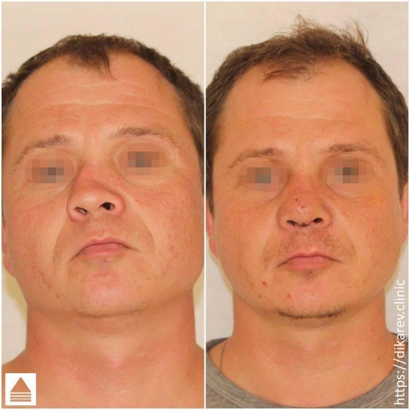 Септопластика носа – решение эстетических (и медицинских) проблем