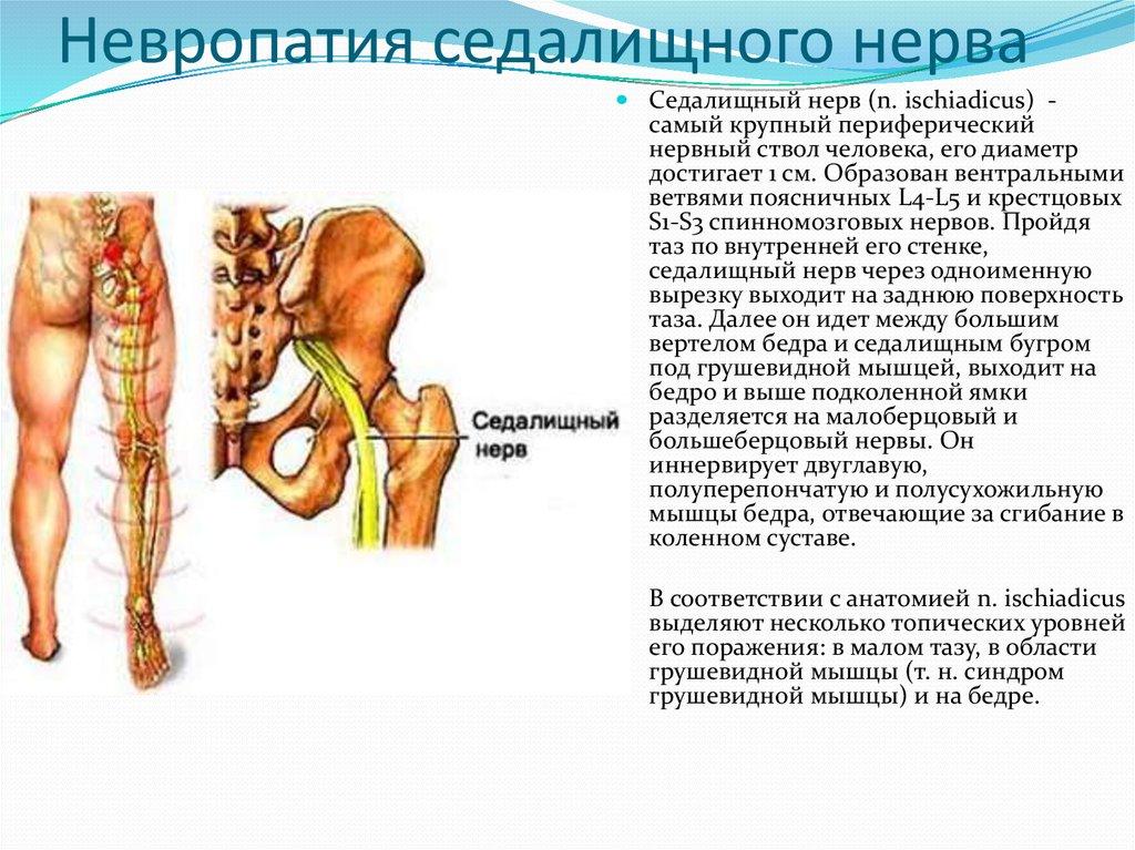Воспаление седалищного нерва: причины, симптомы и лечение