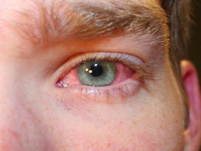 """Склера глаза: строение и функции - """"здоровое око"""""""