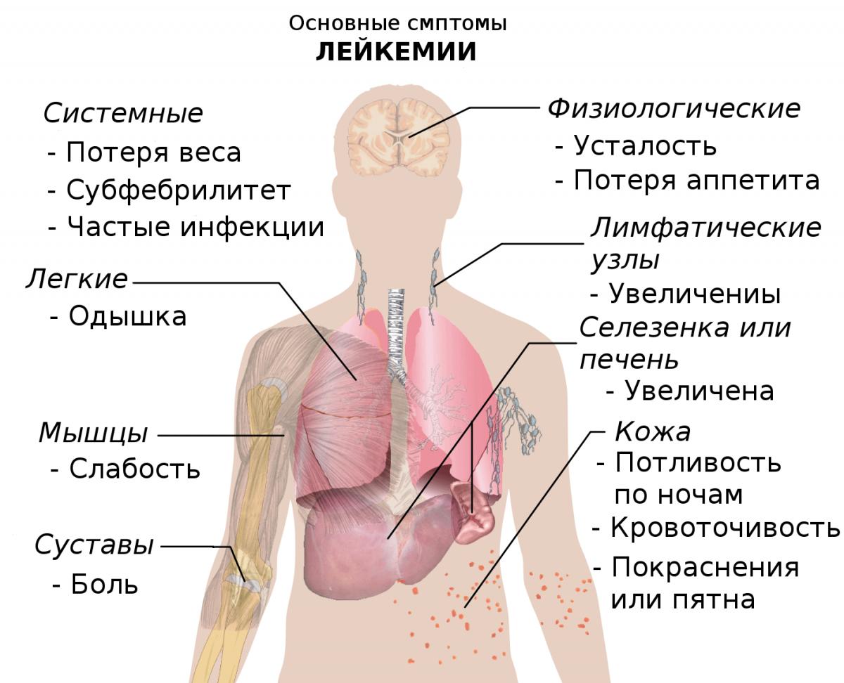 Лейкемия: симптомы у взрослых, причины, прогноз жизни и методы лечения