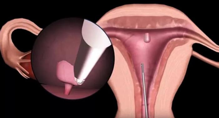 Полип в матке: чем опасен полип в полости матки, узи-диагностика, последствия и лечение в москве