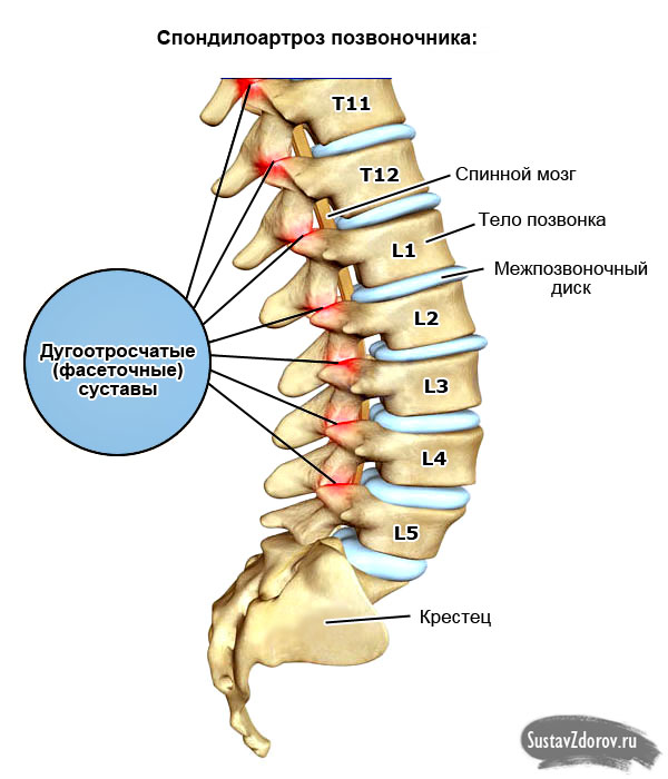 Симптомы и лечение спондилеза поясничного отдела позвоночника