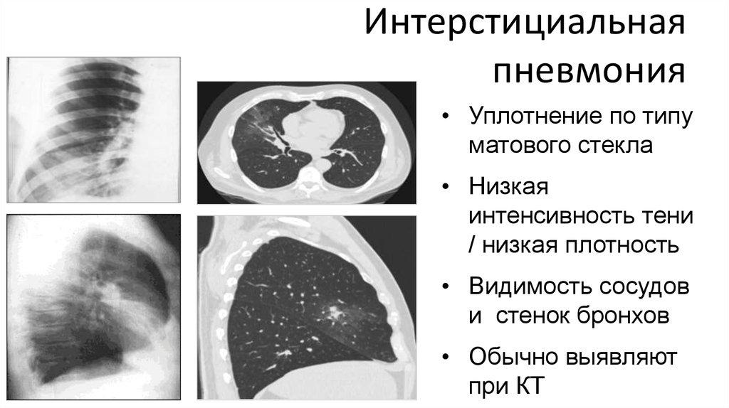 Интерстициальная пневмония: симптомы, лечение | pnevmonya.ru