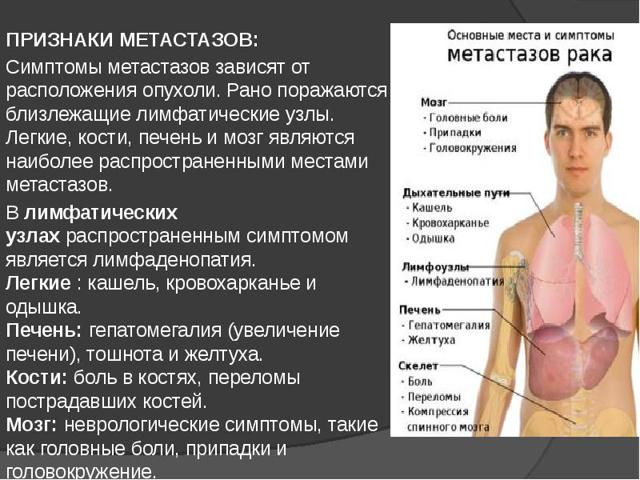Метастазы рака | лечение в клинике «медицина 24/7»