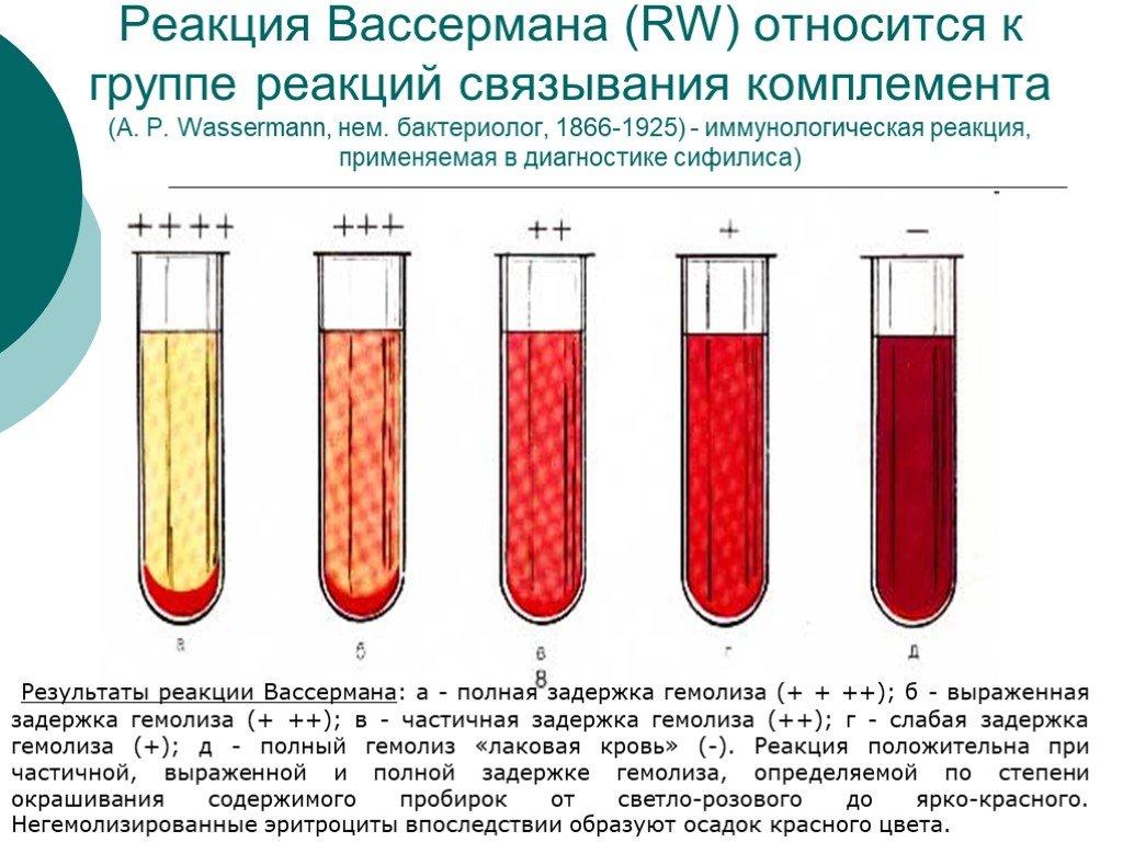 Анализ крови на rw - что такое реакция вассермана, расшифровка результата