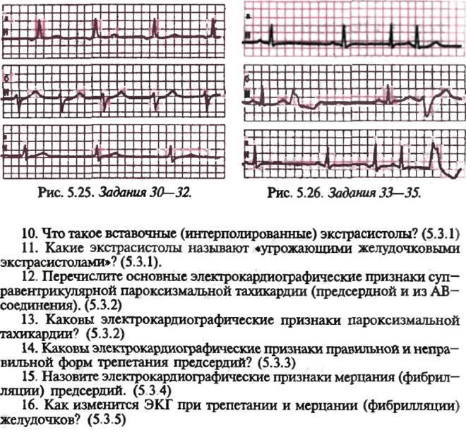 Экг сердца (кардиограмма): что это, расшифровка, нормы