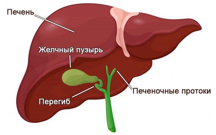Перегиб желчного пузыря симптомы и лечение причины