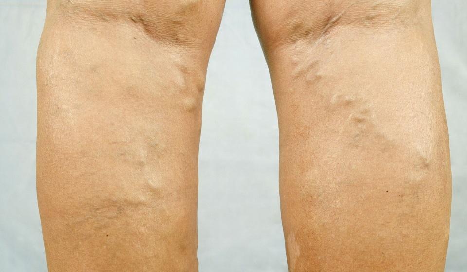 Тромбоз. тромбофлебит вен нижних конечностей. лечение и симптомы тромбоза и тромбофлебита.