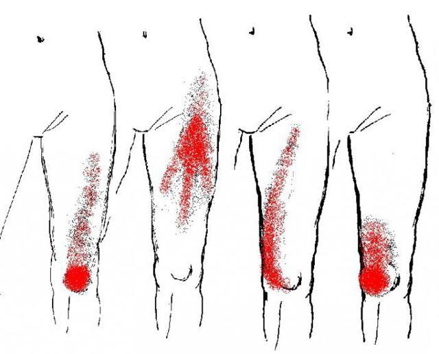 Миофасциальный синдром шейного отдела позвоночника симптомы и лечение