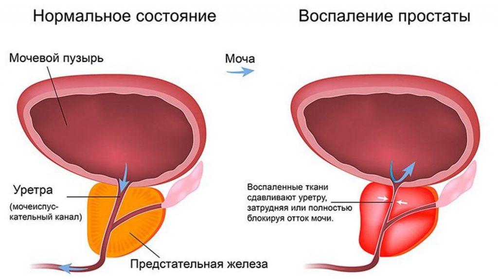 Симптомы простатита и его лечение у мужчин, признаки и профилактика