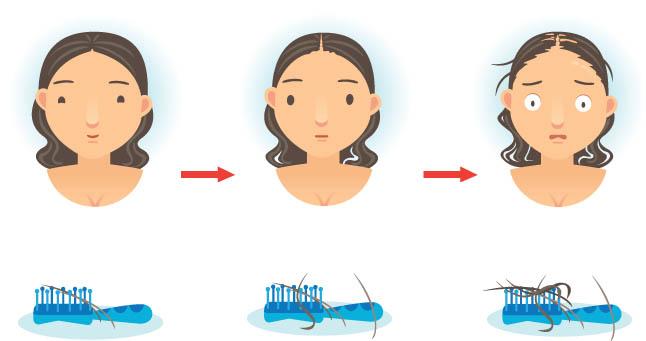 """""""миноксидил"""" для волос: польза и вред, инструкция по применению - luv.ru"""