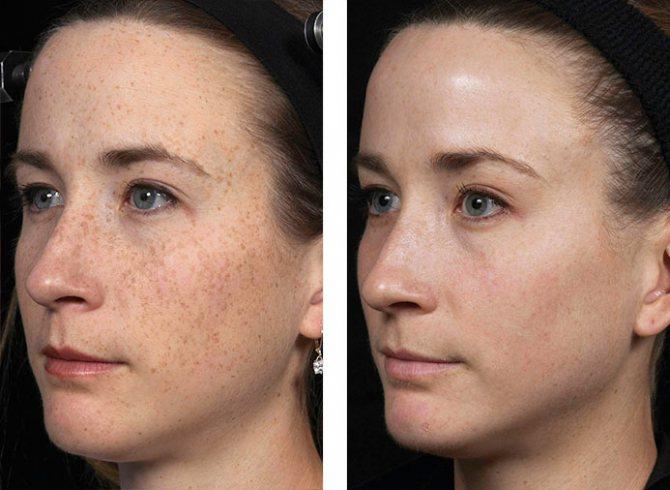 Лазерное омоложение лица: отзывы, противопоказания, фото до и после, цены