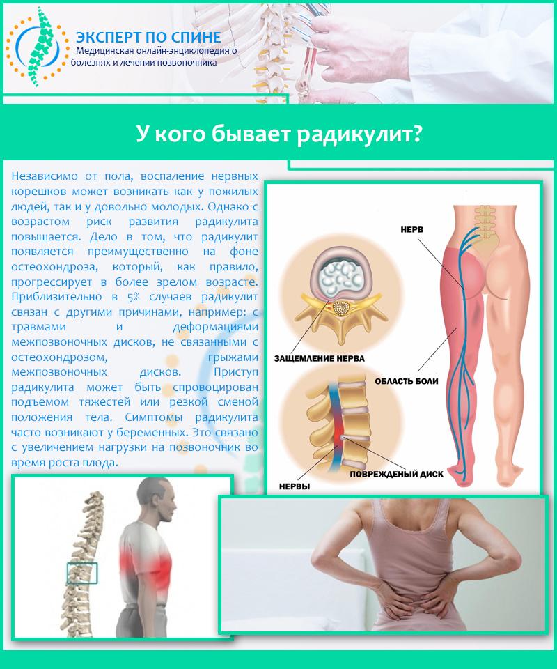 Корешковый синдром (радикулопатия): что это такое, виды (дискогенный, вертеброгенный), симптомы и лечение
