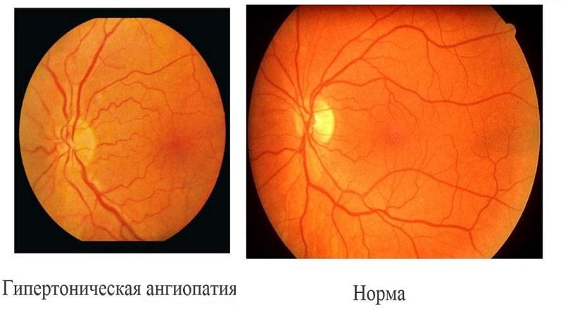 Ангиопатия сетчатки глаза, обоих глаз (диабетическая, гипертоническая, гипотоническая, травматическая, юношеская) – что это такое?