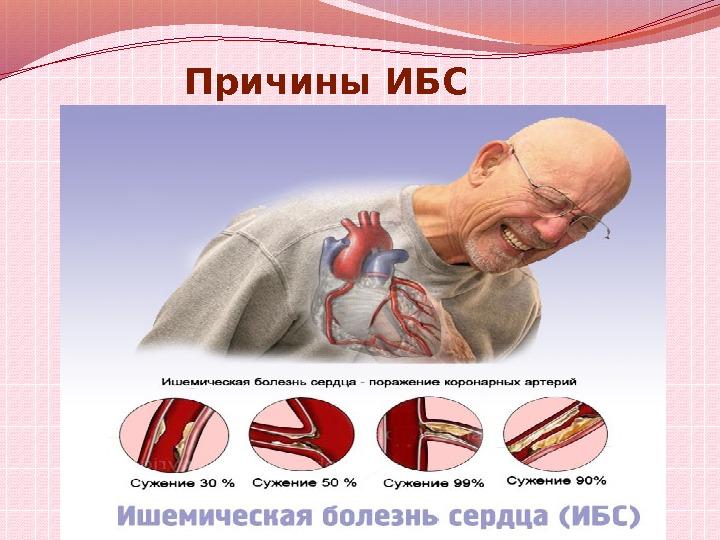 Ишемия: причины возникновения, формы, проявления и течение в различных органах, лечение, прогноз