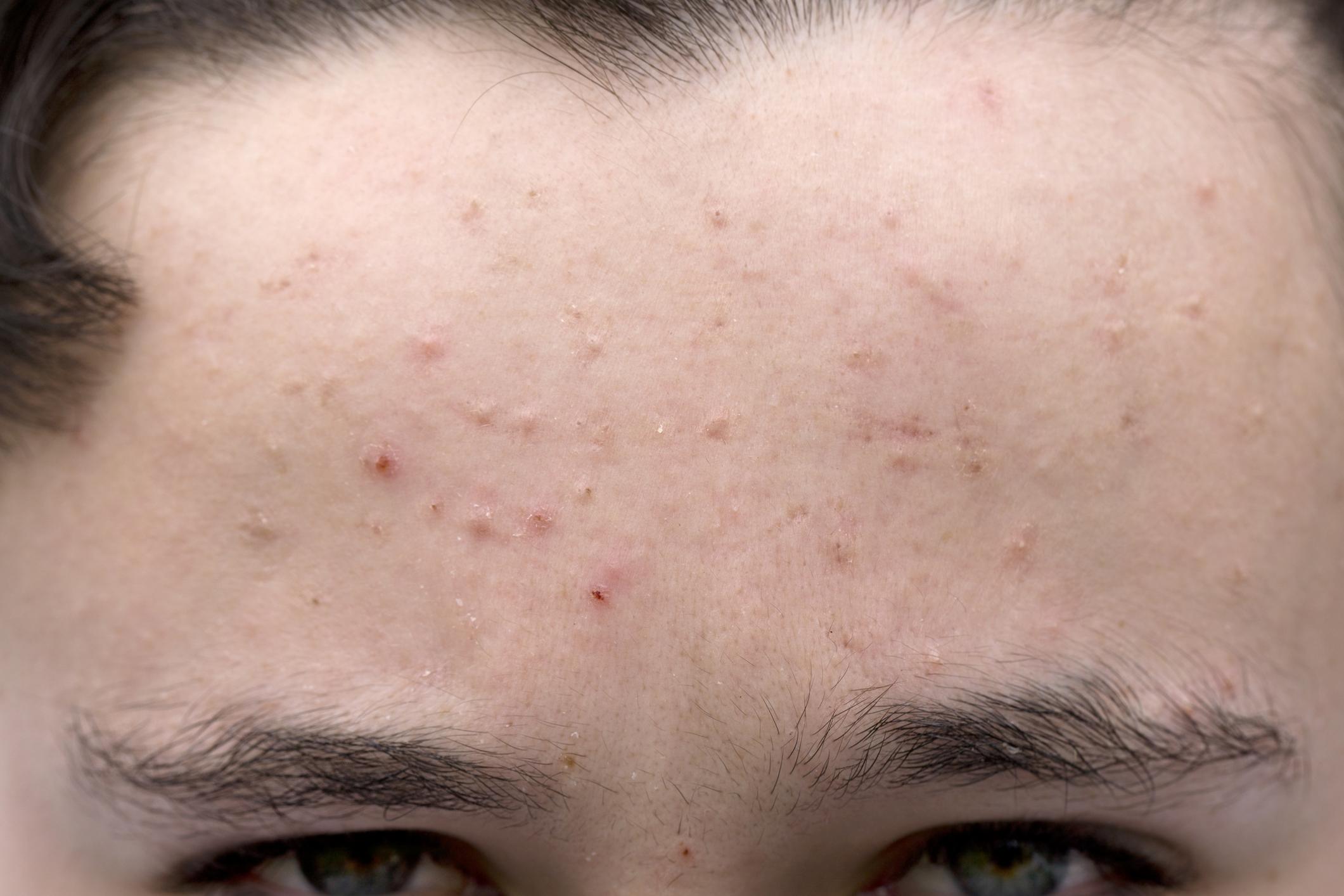 Демодекоз у человека: виды, симптомы, диагностика клеща демодекс, лечение, фото и отзывы
