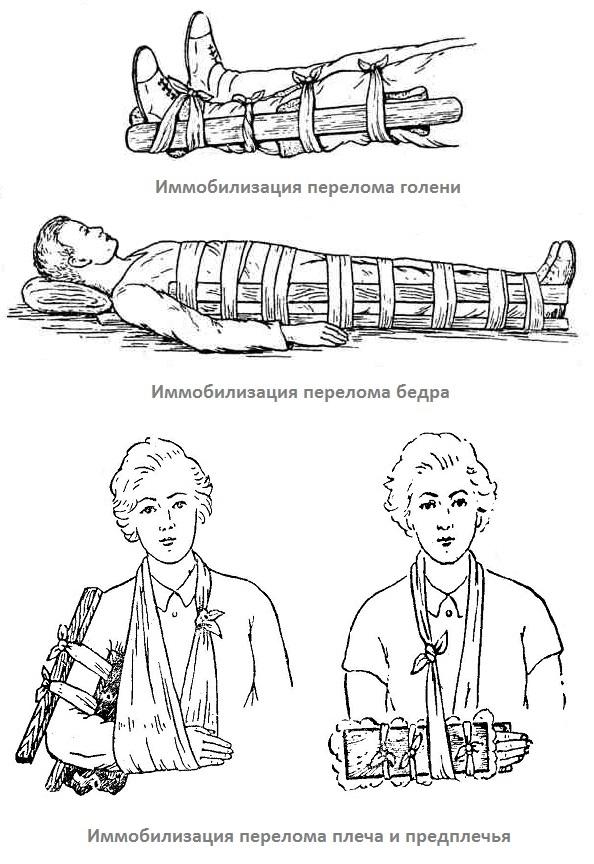 Иммобилизация при переломе стопы - ваши конечности