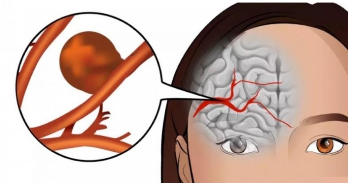 Аневризма головного мозга: причины, симптомы, лечение