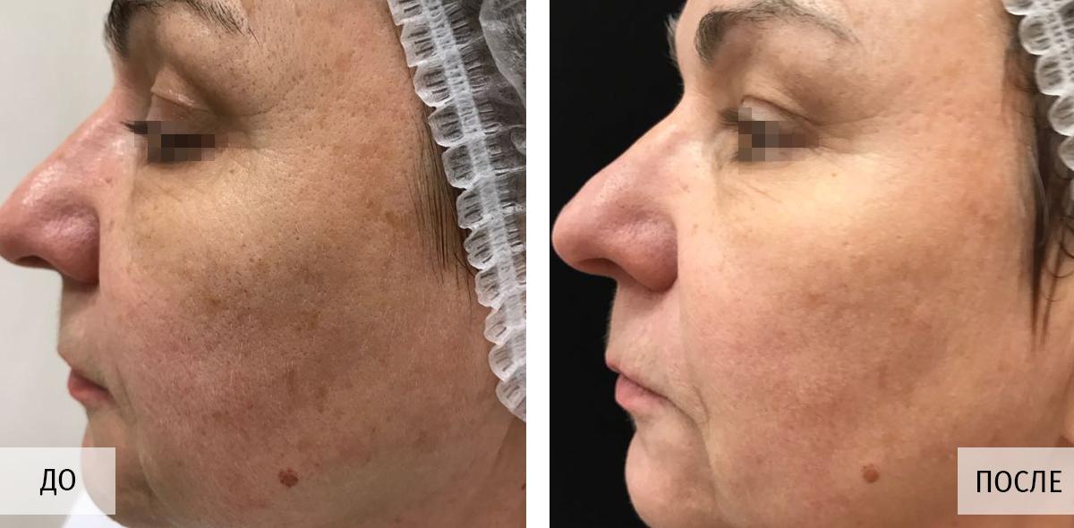 Лазерное омоложение лица: плюсы и минусы процедуры лазерного омоложения кожи